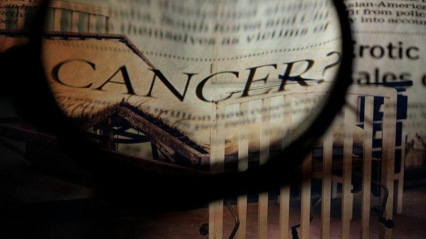 Study Shows Chemotherapy Killing Many Cancer Patients Within 30 Days
