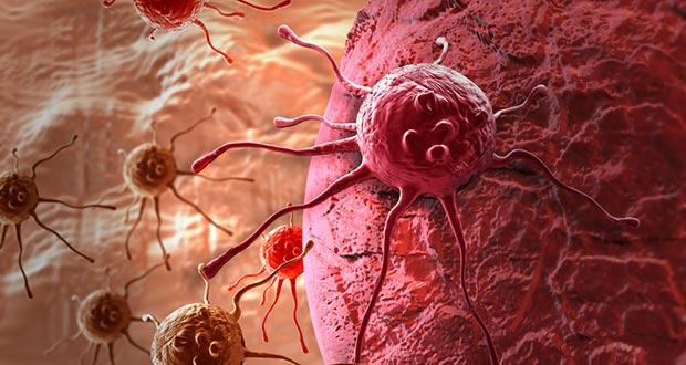 gynecologic-cancers