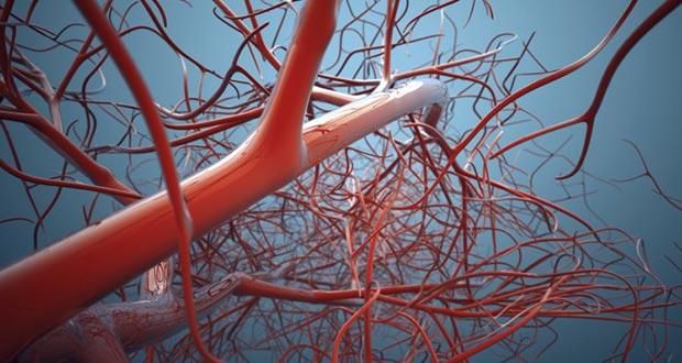 peripheral-vascular-diseases