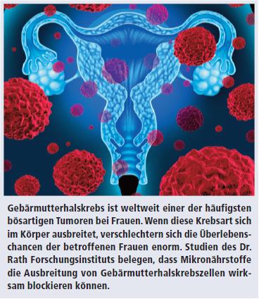 Ist Gebärmutterhalskrebs Tödlich